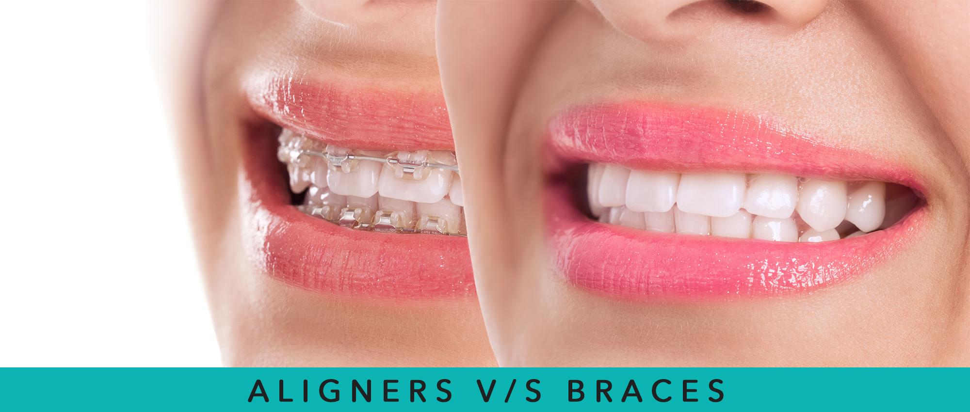 Alignwise Aligner v/s Braces