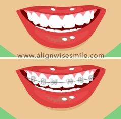 Alignwise aligners v/s braces
